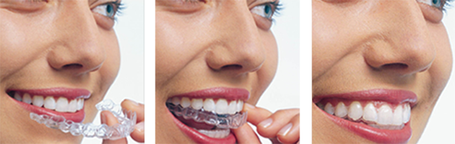 Process of putting on an Invisalign