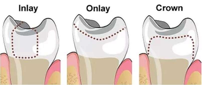 illustration of dental inlay, dental onlay, and dental crown