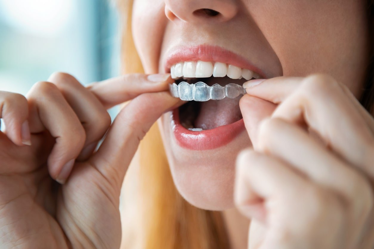 Lady putting on invisalign